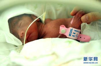 7月16日拍摄的四胞胎中第一个小宝宝,出生时体重只有685克。