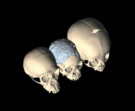 头骨化石三维扫描图