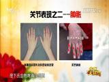 类风湿关节炎可防治(上) 名医大讲堂 2017.11.22 - 厦门电视台 00:25:31