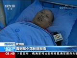 """[朝闻天下]四川内江 误食""""曼陀罗"""" 夫妻俩中毒昏迷"""