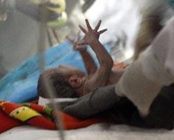 西宁解放军第四医院的医护人员在帐篷内,成功地为藏族妇女噶雍接生一名女婴,女婴的啼哭声,为这个家庭带来了新的希望。
