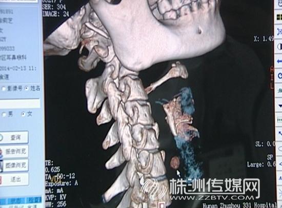 枣核位置CD图 三三一医院耳鼻喉主任医师陈映辉说,他们每个月都能收治六七个被枣核、鱼刺、鸡鸭骨头等异物卡侯的病人,这些病人多数是由于吃东西时不专心,或者有些老年人牙齿松动,脱落,食物得不到充分咀嚼。医生提醒市民,吃东西时一定要细嚼慢咽,尽量避免边进食边谈笑。此外,如果有异物卡在咽喉内,千万不要惊慌,更不要用吞饭团,喝醋等土办法。 原标题: 女子吃枣枣核卡喉咙 医院及时抢救挽回生命 链接: