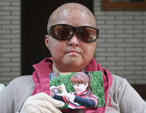 """骨髓移植后骤老40岁台湾熟女告医""""还我青春""""(图)教程普通话实用图片"""