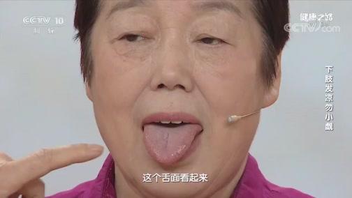 [健康之路]下肢发凉勿小觑 舌质发紫 舌底静脉曲张、发紫有可能存在轻微的血瘀体质